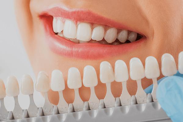 estetska-stomatologija-izbeljivanje